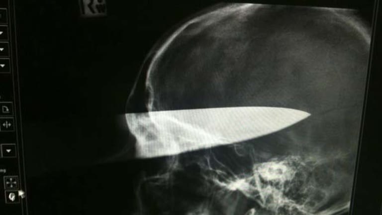An X-ray of Alex's skull.