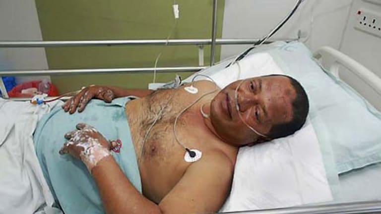 ''Hair-raising'' ... a crash survivor in hospital in Mangalore.