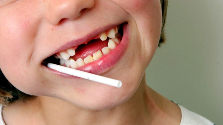 Rotten luck ... baby teeth are especially vulnerable to tooth decay.