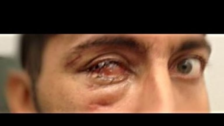 The asylum seeker, referred to only as RN, now has a prosthetic eye as a result of his injuries.