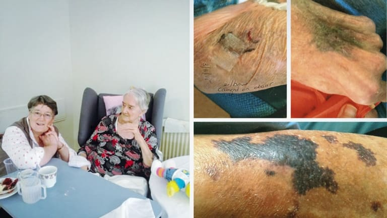 Helen Hardy with her mother, June, and bruises she sustained while in aged care.