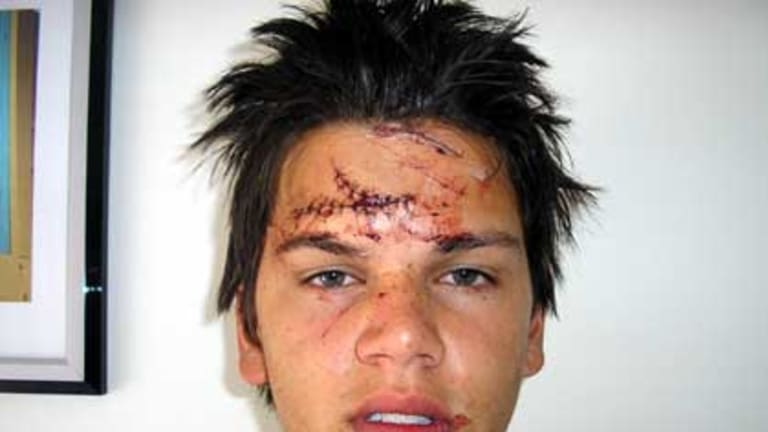 Slashed .... Kent Thomas, 19, who was the victim of a glassing attack in South Melbourne.