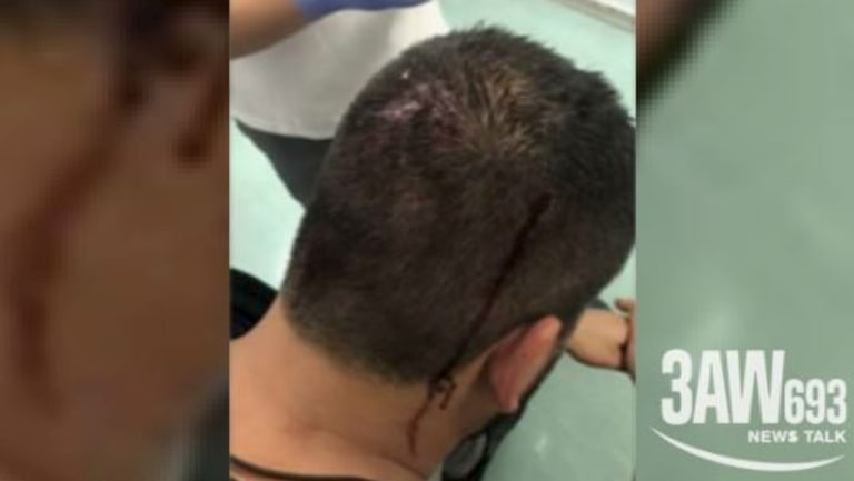 A bleeding passenger after a brawl on the Carnival Legend cruise ship.