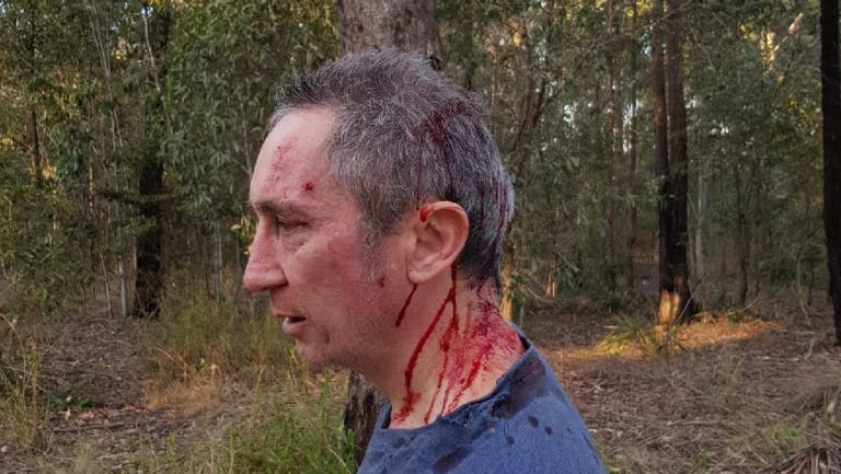 Jim Dodrill after the alleged attack.