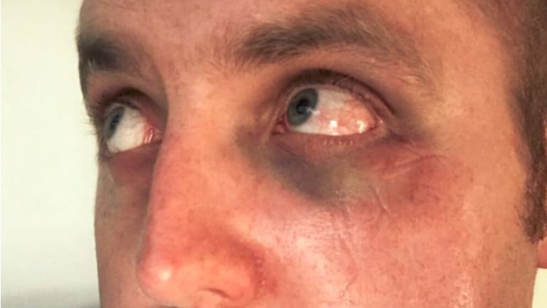 The police officer who was assaulted at Highpoint in December last year.