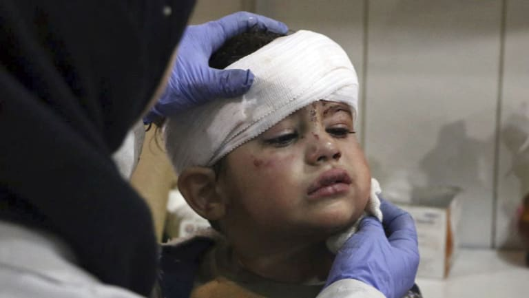An  injured boy receiving treatment at a hospital in Hazeh in eastern Ghouta, the only remaining rebel stronghold near the capital, Damascus, on Monday.