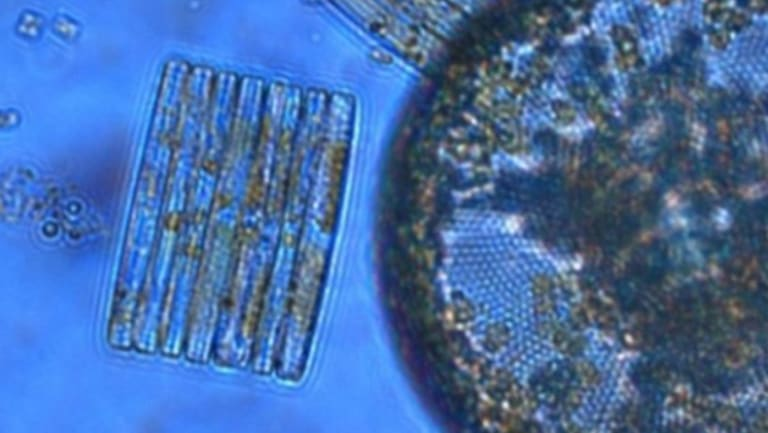 Phytoplankton like these diatoms turn out to be  sensitive to ocean acidification, according to new research.