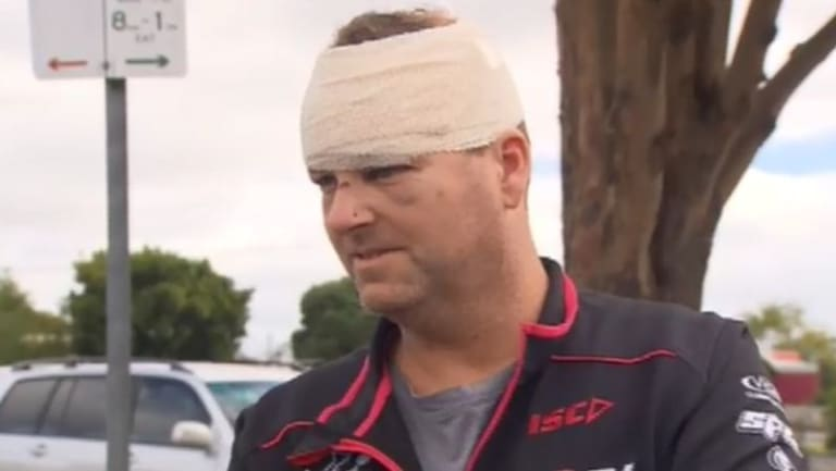 Malcolm Woodford was allegedly hit in the head with his own shovel during a fight with a couple at an isolated campsite near the Great Ocean Road on Easter Sunday.