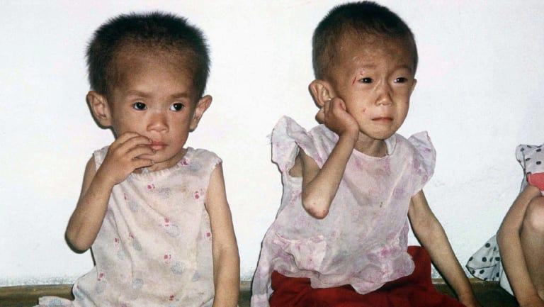 Children between the ages of four and five suffering from malnutrition are pictured in a nursery in Anpyon County, Kangwon province, in hunger-stricken North Korea in 1997.