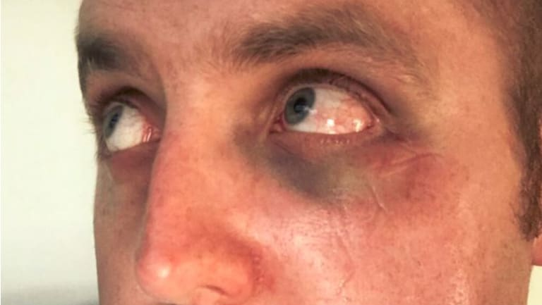 The police officer was assaulted while making an arrest at Highpoint.