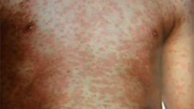 Infected tourist sparks measles alert for major Victorian destinations