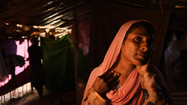 Almas Khatun, 40, from Tula Toli village in Myanmar reveals the scars where her throat and face were cut by the Myanmar military and monks. Her husband and 7 children were killed in the attack on their village.