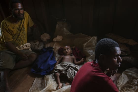 'Right on our doorstep': Papua New Guinea's health crises hit home