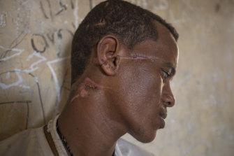 Machete scars criss-cross the face and neck of Tigrayan survivor Abrahaley Minasbo, 22.