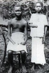 Amputation in the so-called Congo Free State, the personal property of King Leopold II, in 1900.