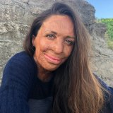 Turia Pitt is a burns survivor, athlete, humanitarian, author and mother, and an inspiration for many.