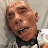 Kevin Fearnside's oral health declined rapidly when he went into an aged care facility.