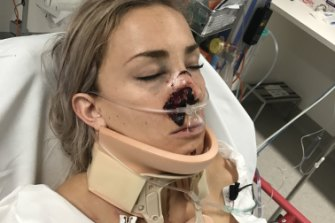 Caroline Buchanan in hospital in January after the crash.