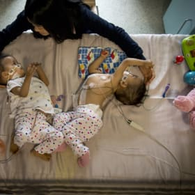 Mum left 'happy' and 'confused' by her conjoined twins separation