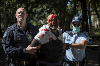 A man is seen bleeding from a head wound incurred during a dramatic arrest in Hyde Park.