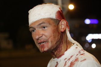 This man was wounded during clashes with police in Minsk.