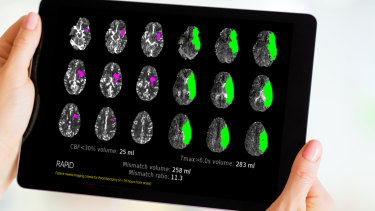 The scan shows regions of the brain already affected by stroke (pink) and those that remain at risk (green).