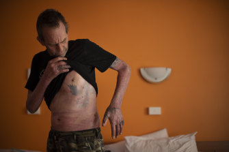 Like patchwork: Roy Annesley's life-saving grafts have left remnantsof old tattoos from his shoulder and ribs on his hands and fingers.