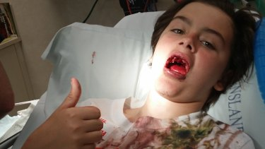 Codie Walton lost three front teeth in an accident at a trampoline park.