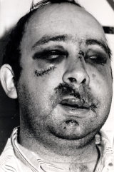 The infamous picture of Labor MP Peter Baldwin in Royal Prince Alfred Hospital recovering from a bashing., the victim of a vicious branch-stacking war.