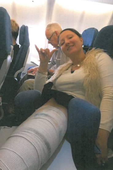 Anna Bowditch had to put her broken leg on a tray table on the flight back from Hawaii.