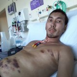 Khaidir Abu Jalil, a patient at St Vincents Hospital fighting a rare disease.