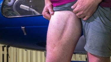 Jack Dingle shows off his scar.