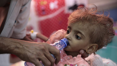 A father gives water to his malnourished daughter at a feeding centre in a hospital in Hodeida, Yemen.