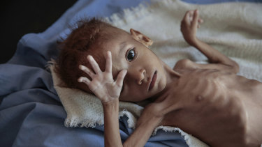 A severely malnourished boy rests on a hospital bed in Hajjah, Yemen. An estimated 85,000 children have died from hunger since the start of the war.