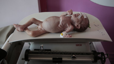 A malnourished boy, Maher Ahmed, is placed on a scale Al-Sabeen hospital in Sanaa, Yemen.