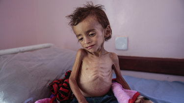 A malnourished boy sits on a hospital bed at the Aslam Health Centre, Hajjah, Yemen, last month.