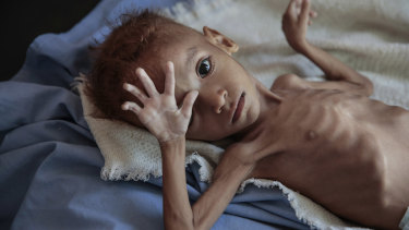 A severely malnourished boy rests on a hospital bed in Hajjah, Yemen. An estimated 85,000 children have died from hunger.