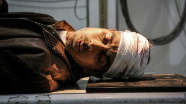 An injured Syrian man, who was wounded by the shelling of the Syrian government in Ghouta, Damascus, Syria.