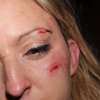 Jessie Scarlett-Rhodes' injuries.