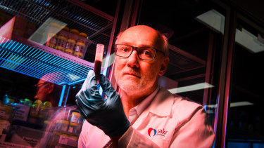 Professor Peter holds a vial of blood. His work usually focuses on strokes, not cancer.