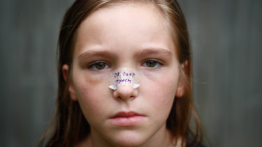 Jamie Garrett, 10,  was surfing when she was hit in the face by a board with a leg rope.