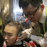 Politician's ear bitten off during violent Hong Kong protests