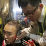 Politician's ear bitten off during violent Hong Kong protests