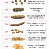 The Bristol Stool Chart is used in hospitals and aged care facilities across the world to monitor and prevent constipation.
