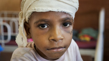 Falling rocks hurt five-year-old Douglas Jacob when a 7.5 magnitude earthquake hit Papua New Guinea on February 26. It is estimated 125,000 children are in need of help in PNG.