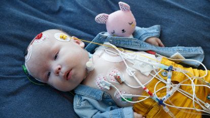 We just want to take our baby home: The rare syndrome keeping four-month-old Jasper in hospital