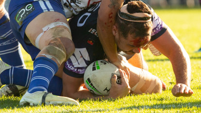 Storm too good for Bulldogs but focus on concussion after head clash