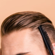 Men are more paranoid about their hair then ever before