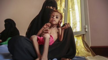 A woman holds a malnourished boy at the Aslam Health Centre in Hajjah, Yemen, late last year.