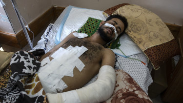 A 22-year-old man at Shifa hospital in Gaza City, where he is receiving treatment for wounds caused by an Israeli strike that hit his family house in town of Beit Hanoun.  J